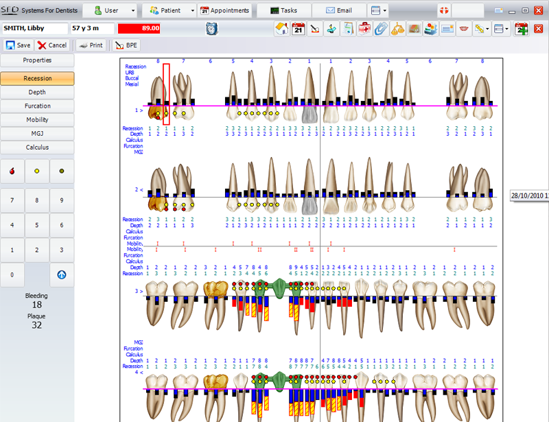 Dental software features easy to use systems for dentists for Periodontal chart template